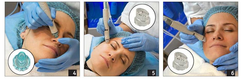 2015-6-kosmetolog-novii-metod-glubokoko-ochischeniya-hydrafacial-3