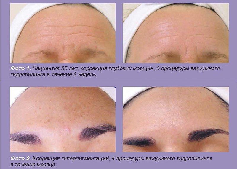 До и после процедуры HydraFacial